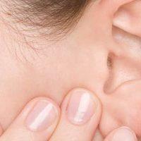 Otoplastia: Cirurgia plástica para orelha de abano