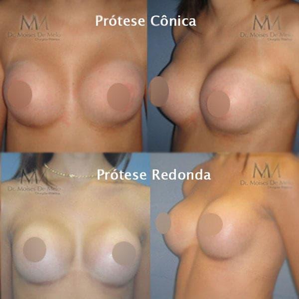 Comparativo entre diferentes tipos de prótese de silicone redonda e cônica