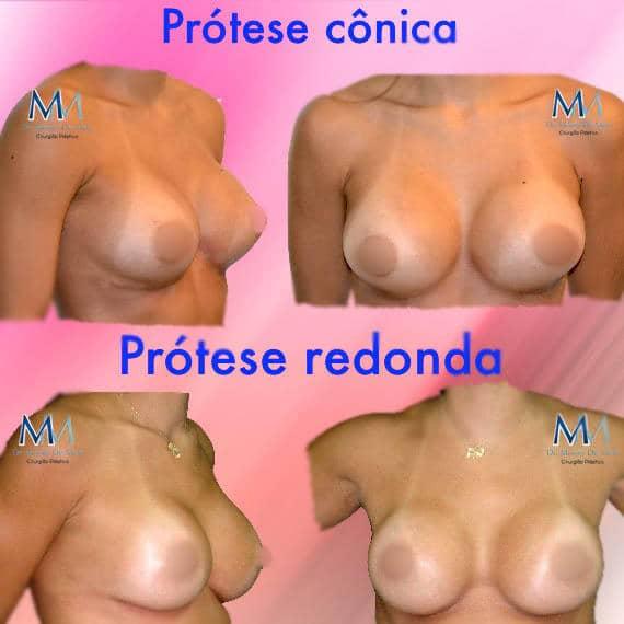 Comparativo entre prótese de silicone cônica e prótese de silicone redonda