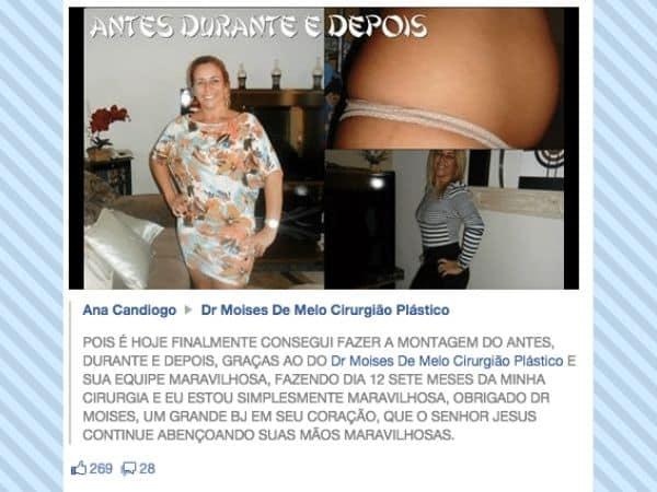 Depoimento sobre cirurgia plástica – Ana Candiogo