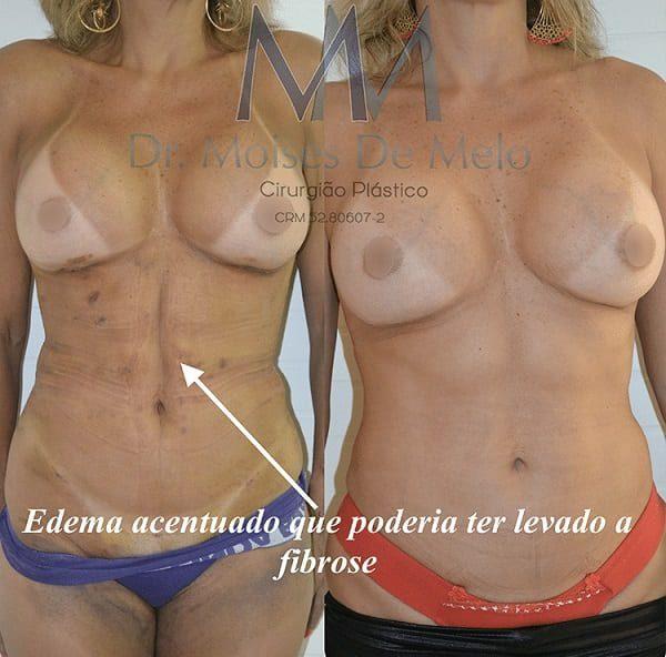 Pós operatório de Cirurgia Plástica - Fibroses após hidrolipoaspiração