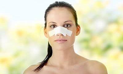 rinoplastia cirurgia plastica dr moises de melo cirurgia no nariz