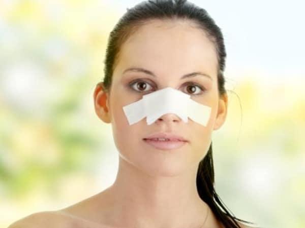 1e73be Rinoplastia cirurgia plástica no nariz para harmonização facial Dr. Moises de Melo Cirurgia plástica